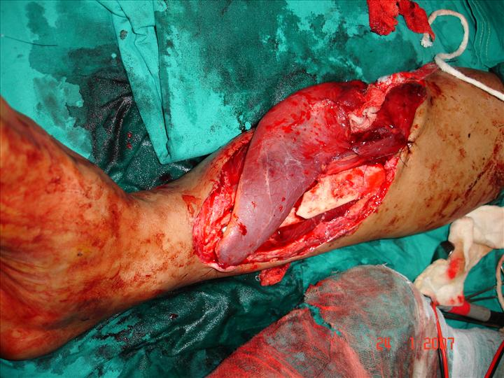 compound fracture leg covered with gracilis flap ., Human body